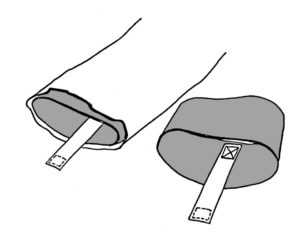 Figure 2. The cuff supports